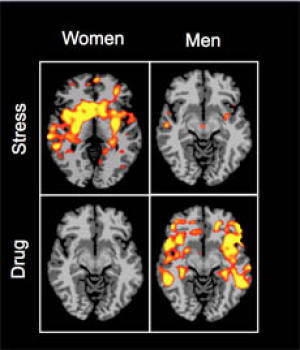 Cocaine Dependence Differences in Men and Women